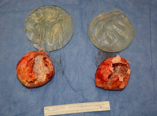 breast implants for blog 5
