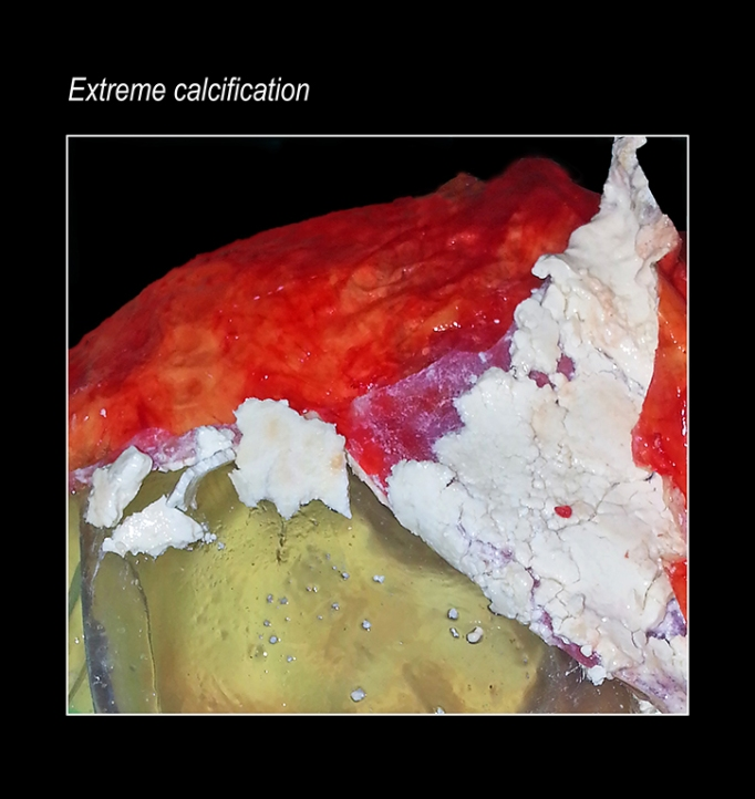 extreme calcification resized