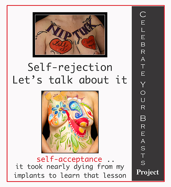 self-acceptance cyb 3 RS