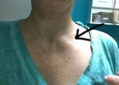 lymph-nodes-neck-2